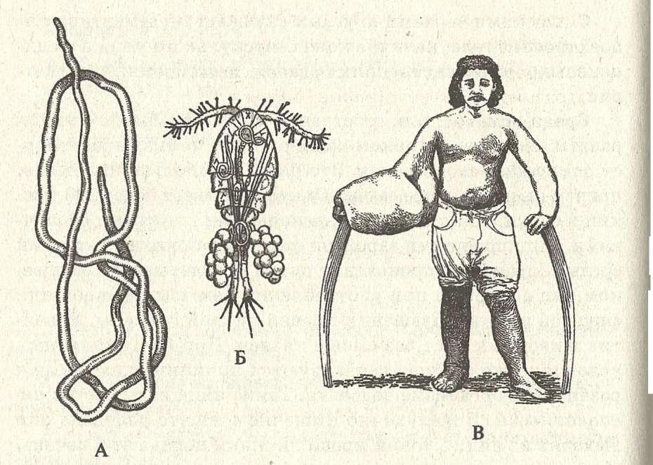 паразиты под ногтями человека видео
